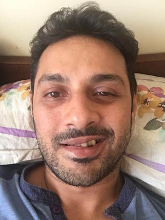 apurva asrani is suffers from bells palsy