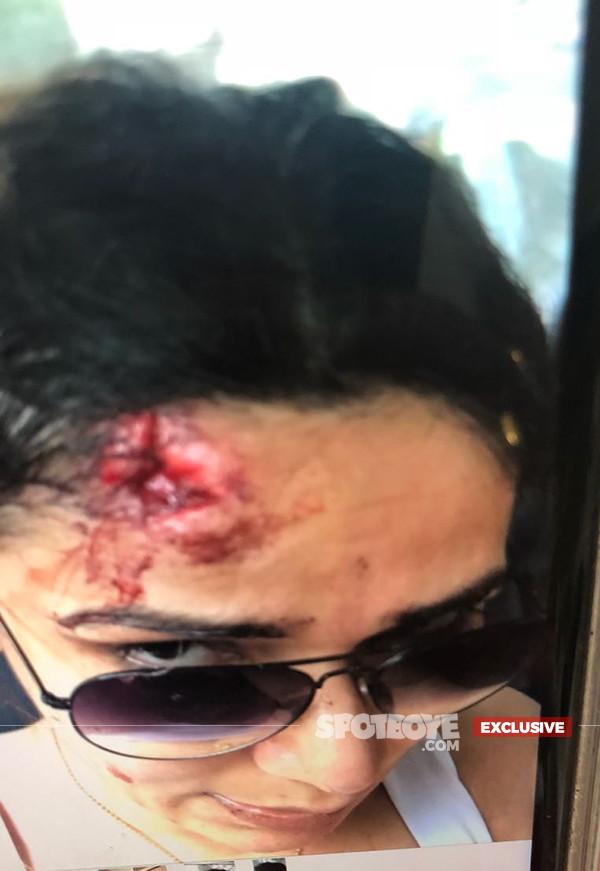 Neeru Randhawa After Beaten Up By Armaan Kohli