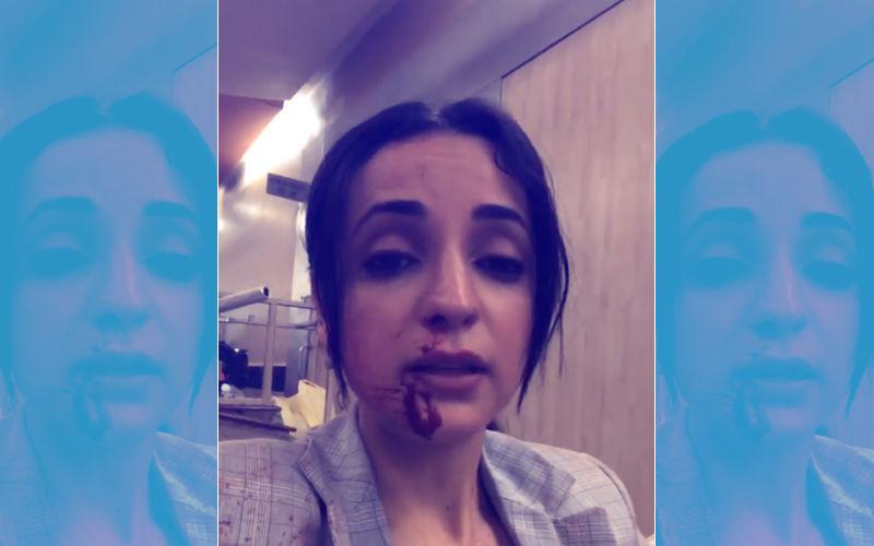 Video: Sanaya Irani Bleeds From Nose, Blames Her Director