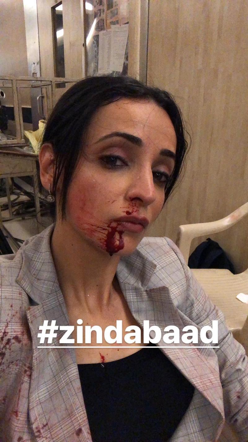 sanaya irani while shooting for zindabad