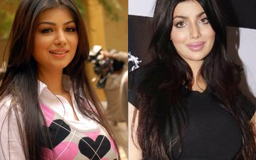Ayesha Takia Slams Trollers Ridiculing Her For Going Under The Knife