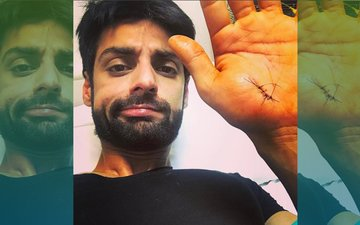 OUCH! TV Heartthrob Karan Wahi Injures His Hand, Gets Stitches
