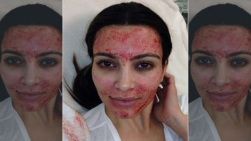 Kim Kardashian Sues Charles Runels For Using Her Picture Without Permission To Promote Vampire Facial