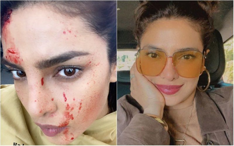 Priyanka Chopra Jonas Drops A Bloody-Faced Selfie Whilst Filming Citadel; Jokes 'You Should See The Other Guy'- See Pic