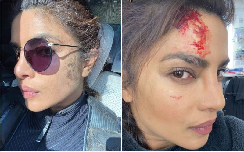 Priyanka Chopra Injures Herself On The Sets Of Citadel; Gives A Glimpse Of Her 'Real' And 'Fake' Wounds- See Pics