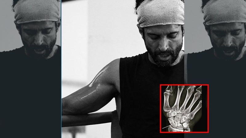 Farhan Akhtar Suffers A Hairline Fracture While Shooting For Toofan; Check Out His X-Ray Report That Looks Like 'Tetris'