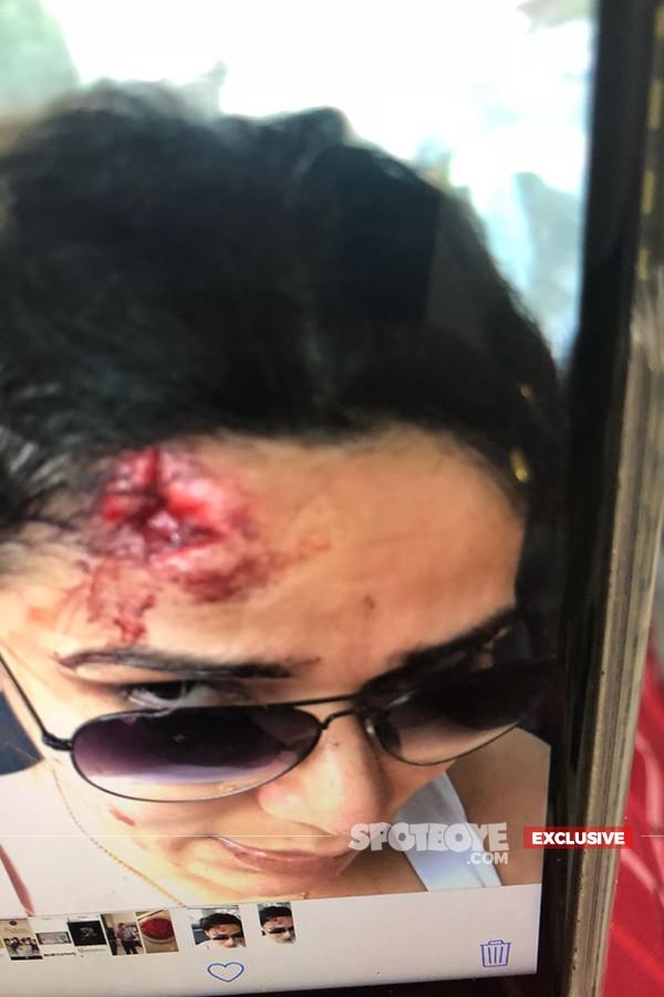 Picture Of Neeru Randhawa After Being Beaten Up By Armaan Kohli