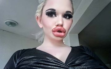 Andrea Ivanoa AKA Real Life Barbie Desires To Have The Biggest Lips; Has Already Had Lip Fillers Injected 20 Times