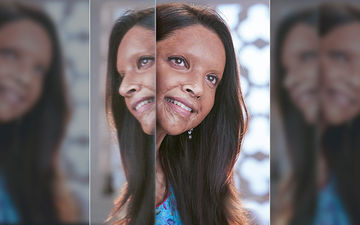 Chhapaak Trailer: Deepika Padukone's Face Might Be Burnt But Her Spirit Is LIT; This Is Standing Ovation Material