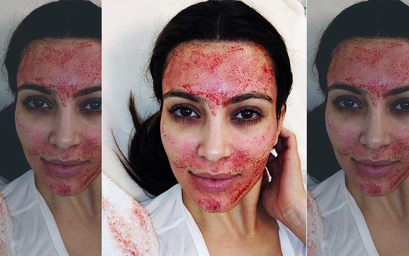 Kim Kardashian Reaches Settlement In Lawsuit Against 'Vampire Facial' Doctor