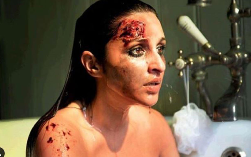 Parineeti Chopra's Look From The Girl On The Train Revealed! Her Shocked Bruised Face Will Send Chills Down Your Spine