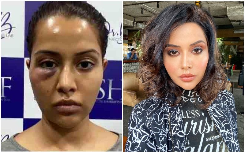 Bigg Boss Fame Raiza Wilson BLASTS Dermatologist Claiming She Was 'Forced' To Undergo A Procedure; Shares Pic After It Goes Wrong