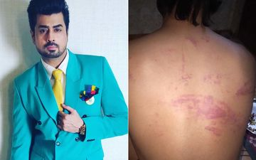 Bigg Boss 8's Pritam Singh Brutally Beaten Up By Goons For Rescuing A Couple; Shares Disturbing Images Of Injuries