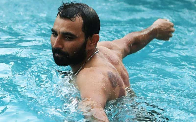 IPL 2020: Kings XI Punjab's Mohammad Shami's Pictures From The Pool Giving Glimpses Of Marks From Cupping Session Call For Attention
