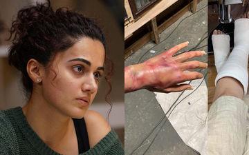 तापसी पन्नू ने इंस्टाग्राम पर शेयर की तस्वीर, हाथ-पैर में लगी चोट देखकर परेशान हुए फैंस