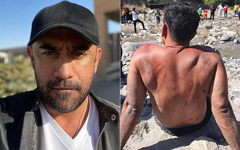 Amit Sadh Suffers Serious Back Bruises During Rigorous Training For Zidd; Angry Red Marks On His Back Look Disturbing