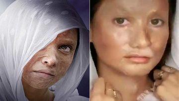 Chhapaak: Deepika Padukone Turns Acid-Attack Look Into TikTok Challenge; Gets Brutally Trolled On Social Media