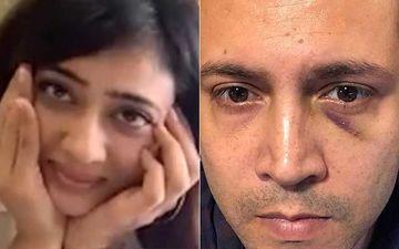 After Sharing Shweta Tiwari's Picture, Estranged Husband Abhinav Kohli Posts Pic Of His Swollen Eye; Warns Followers, 'Don't Get Abusive'