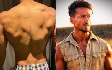 Baaghi 3: Cuts And Scrapes Won't Slow Down Tiger Shroff; Shares His Bruised Body Picture On Instagram