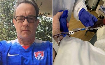 Tom Hanks Donates A Bag Of Plasma After Recovering From Coronavirus; Says: 'It's As Easy As Taking A Nap'
